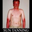 Sun Tanning Fail