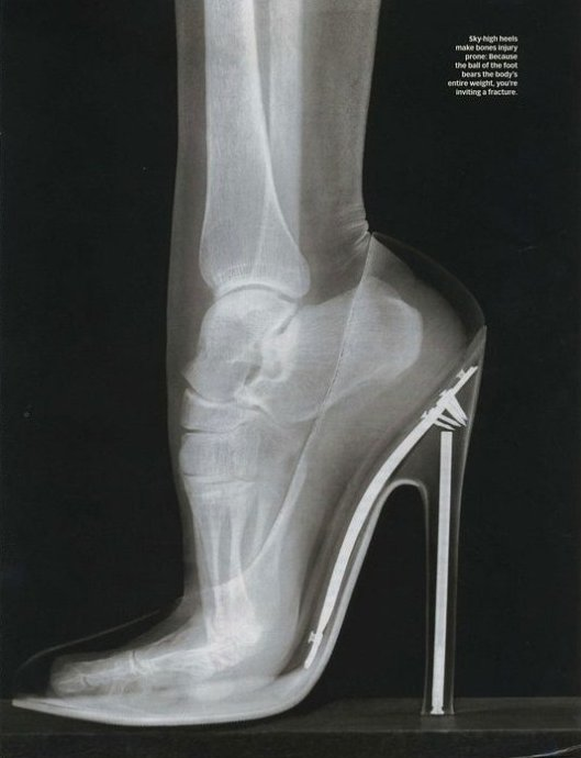 X-Ray of Foot In High Heels