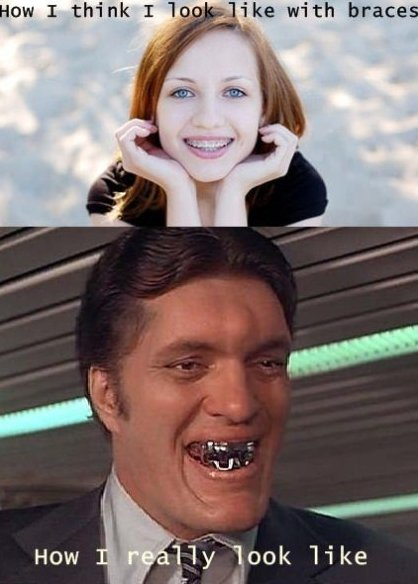 What Braces Look Like