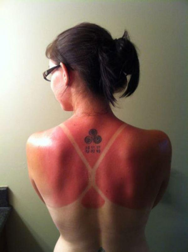 Sunburn Level 9000