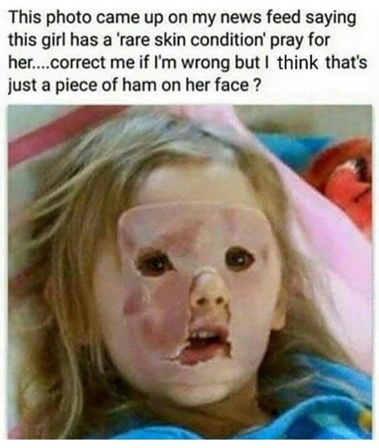 Rare skin condition